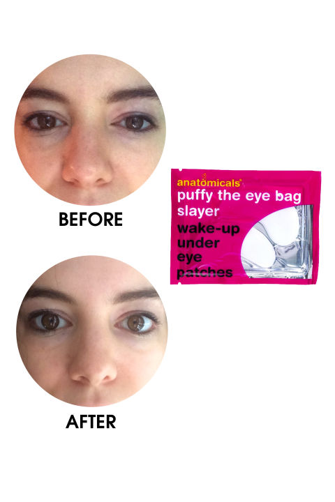 the best eye cream for puffiness