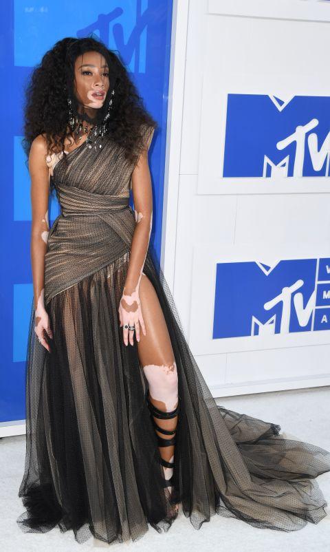Winnie Harlow 8 look à retenir des mTV Music Awards 2016