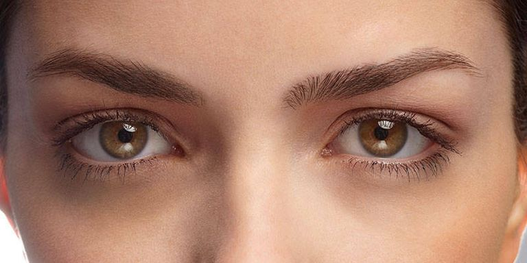 How to Get Rid of Under-Eye Circles