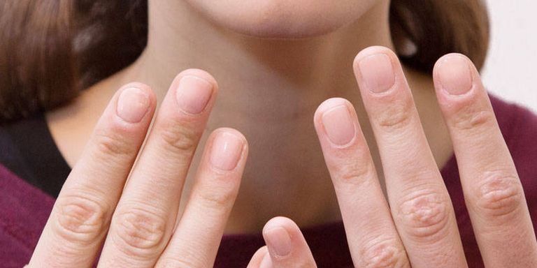 Treatment for brittle nails how to strengthen weak and brittle nails - Easy home remedy strengthen dry brittle nails ...