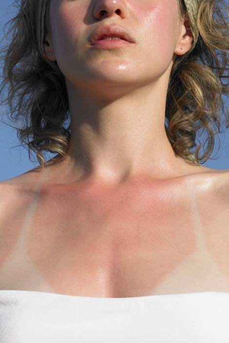 The Problem: Sunburn  Prevention is the first line of defense—and  new SPF technology makes shielding your skin at the beach or pool easier than ever. But hey, no one (and no sunscreen) is perfect and sometimes burns happen. The Solution:  Ice-cold compresses can reduce the pain and cool your skin, says dermatologist Jeanine Downie, MD, who also suggests using hydrocortisone cream. But if you're not able to get relief at home, see a doctor. She recommends the prescription wound-healer    Biafine, used for years in Europe to soothe everything from sunburn to biopsy surgical wounds.